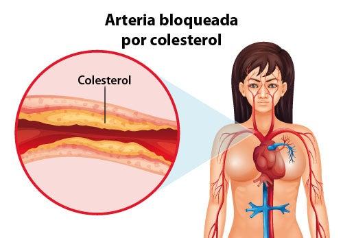 Medidas que se deben tomar para controlar el colesterol