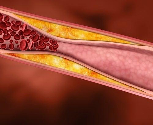 Como tratar el colesterol de manera natural