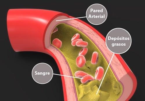 Remedios caseros para reducir el colesterol