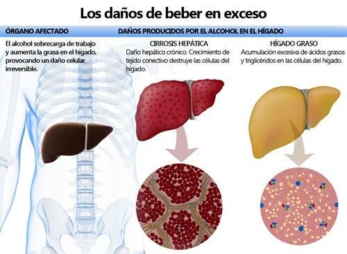Efectos que tiene el alcohol en el organismo