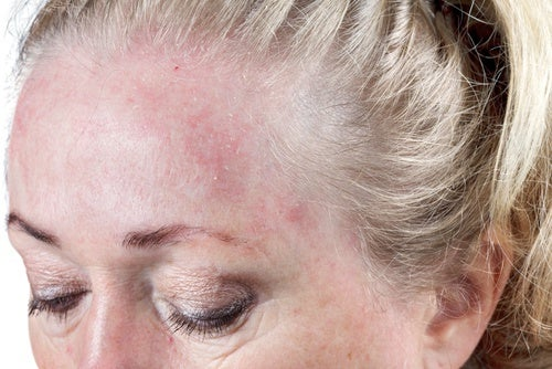 Dormir con el pelo húmedo podría contribuir a generar infecciones cutáneas.