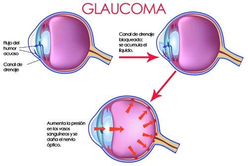 Glaucoma: cuándo ocurre y cómo evitarlo