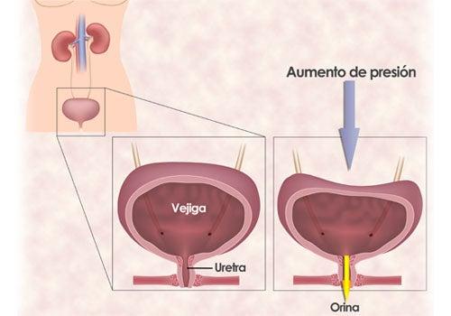 Ejercicios para la incontinencia urinaria de la mujer