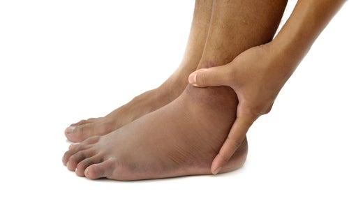 Lesion en el pie