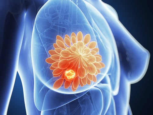 Mastectomía: todo lo que debes saber
