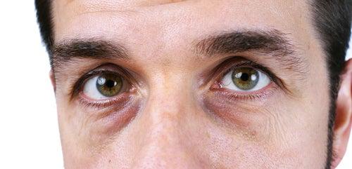 4 soluciones naturales para acabar con las ojeras