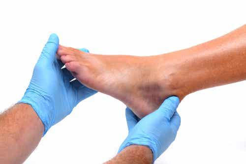 Hinchazón de tobillos y pies, causas y prevención