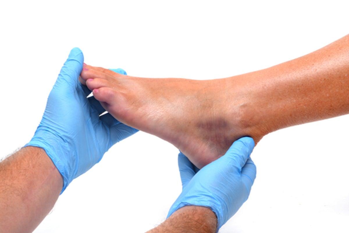diabetes dolor de pie y tobillo