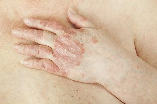Lacide dambre dans la solution au psoriasis