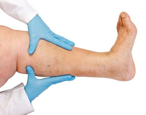 Eliminar retencion de liquidos piernas