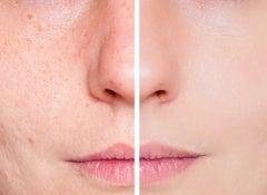 Rostro acne(1)