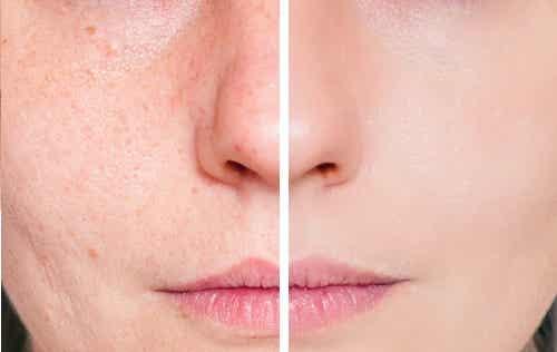 5 señales de alergia a los cosméticos que debes conocer
