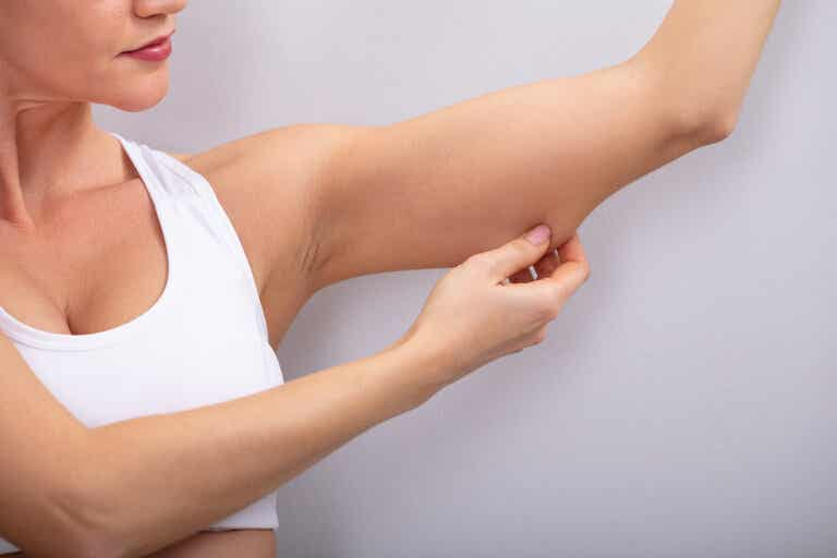 Cómo corregir la flacidez en los brazos