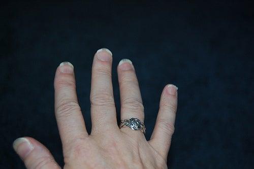 El análisis al hongo de las uñas irkutsk