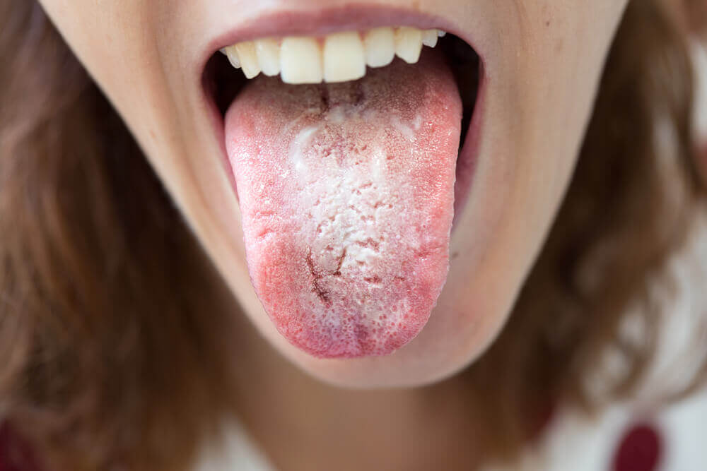 Lengua blanca por candidiasis oral.
