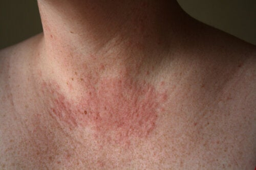 ¿Cómo combatir la alergia al sol?