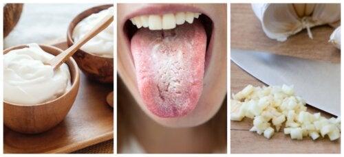 Remedios caseros para tratar la candidiasis oral: una revisión