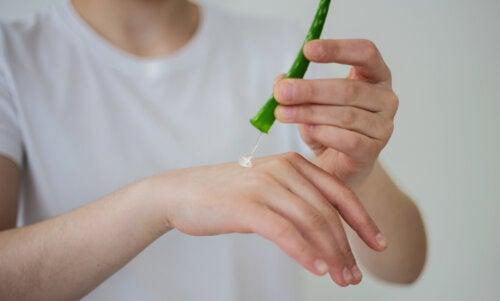 Remedios naturales para quemaduras menores