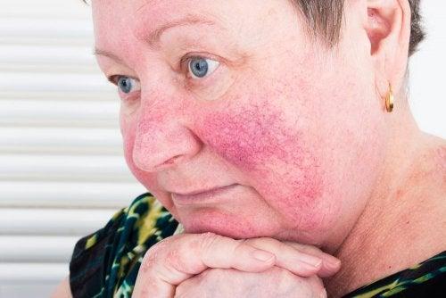 Mujer con rosácea