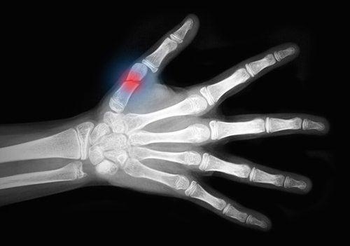Cómo acelerar la curación de una fractura de hueso