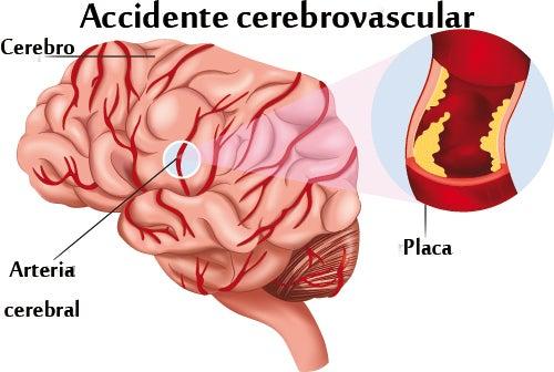 Conocer los síntomas de ataque cerebral puede salvar vidas