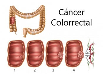Human papillomavirus norsk - Cancer colon norsk