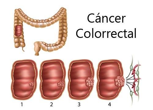 cáncer colorrectal en mujeres