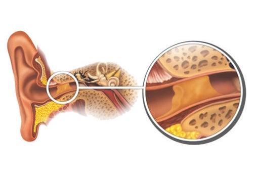 ¿Cómo retirar los tapones de cera de forma natural?