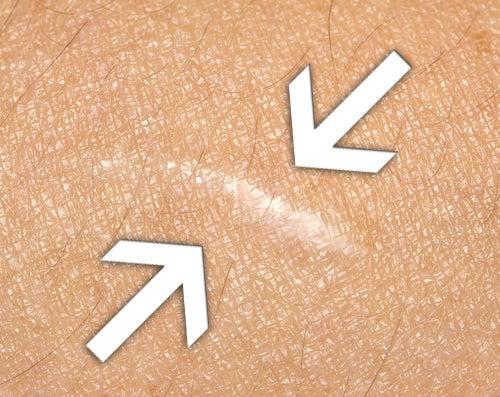 Tratamiento para borrar o atenuar cicatrices