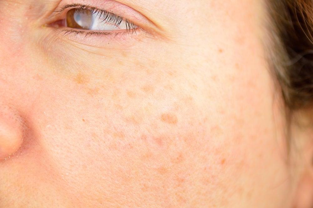 Agua oxigenada como remedio natural para aclarar manchas en la piel