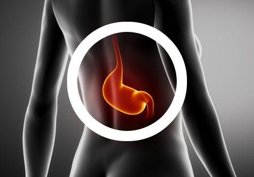 Pautas en tu dieta para tratar la gastritis