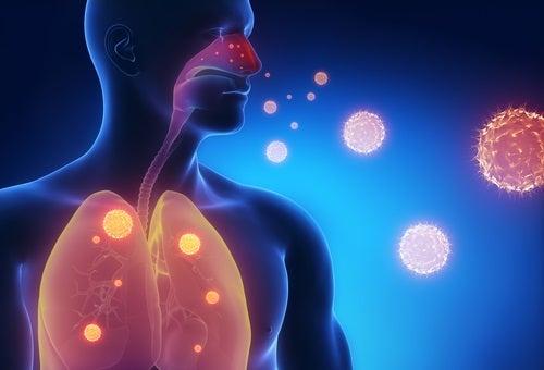 Dibujo de un hombre con imágenes de virus en sus pulmones.