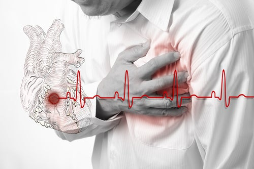 ¿Sabes reconocer los síntomas de un infarto?