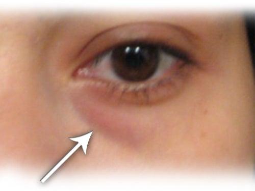 Tratamiento casero para eliminar las ojeras