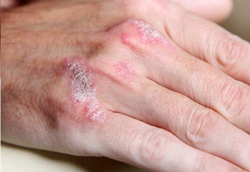 5 aspectos que debes conocer sobre las enfermedades autoinmunitarias