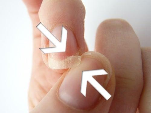 Uñas frágiles: causas y remedios