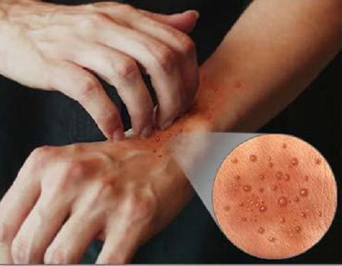Piel con síntomas de reacción alérgica