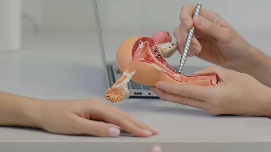 Síndrome de ovarios poliquísticos: lo que debes saber