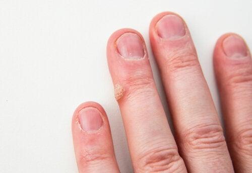 ¿Es posible quitar las verrugas de forma natural?