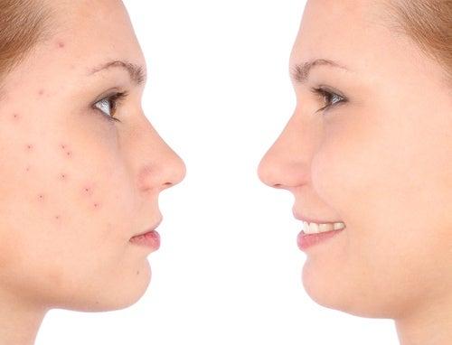 mantener-las-brochas-de-maquillaje-limpias-evita-complicaciones