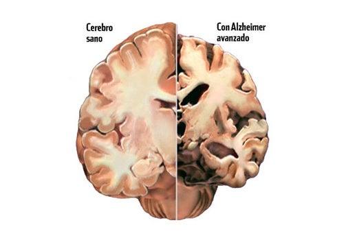Alzheimer, detectando a tiempo sus primeros síntomas.