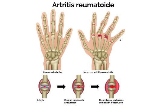 ¿Cuáles son los detonantes de la artritis reumatoide?