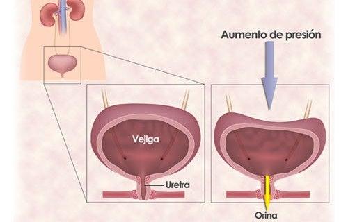 Hiperactiva tratamiento medico vejiga