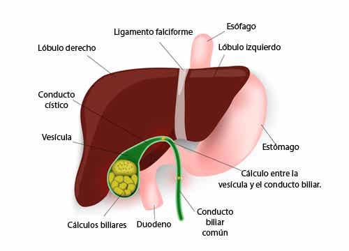 Dietas bajas en calorías y cálculos en la vesícula