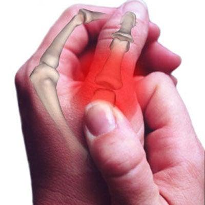 pulgar frenar la artrosis