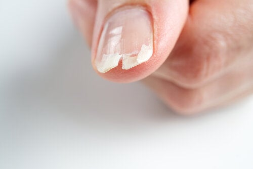 Características de las uñas que dan pistas acerca del estado de salud