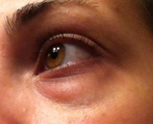 La hoja de col de las bolsas en los ojos