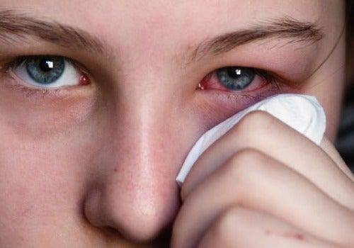 Persona con ojos rojos