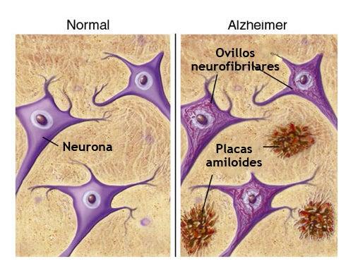 Alimentos que nos protegen del alzhéimer
