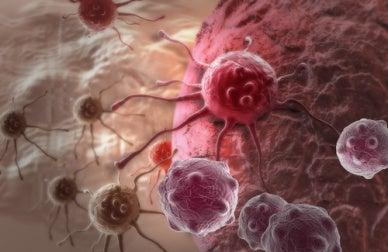 Variables psicológicas y cáncer: posible asociación